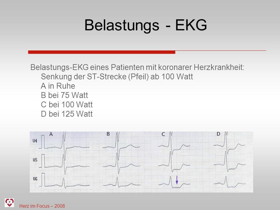 Herz im Focus – 2008 Belastungs - EKG Belastungs-EKG eines Patienten mit koronarer Herzkrankheit: Senkung der ST-Strecke (Pfeil) ab 100 Watt A in Ruhe