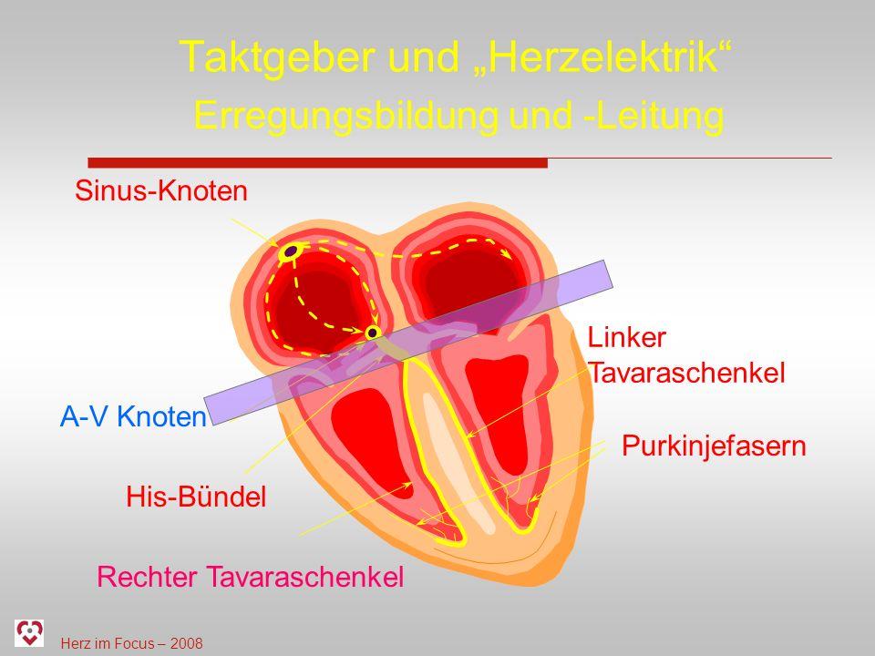 Herz im Focus – 2008 Taktgeber und Herzelektrik Sinus-Knoten A-V Knoten His-Bündel Rechter Tavaraschenkel Linker Tavaraschenkel Purkinjefasern Erregun