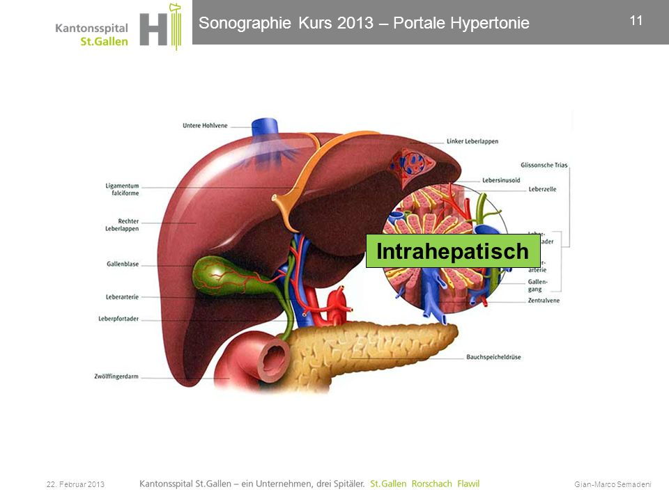 Sonographie Kurs 2013 – Portale Hypertonie 22. Februar 2013Gian-Marco Semadeni 11 Intrahepatisch