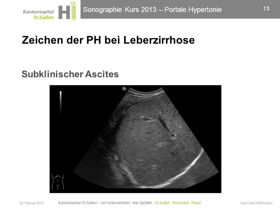 Sonographie Kurs 2013 – Portale Hypertonie Zeichen der PH bei Leberzirrhose Subklinischer Ascites 22. Februar 2013Gian-Marco Semadeni 13