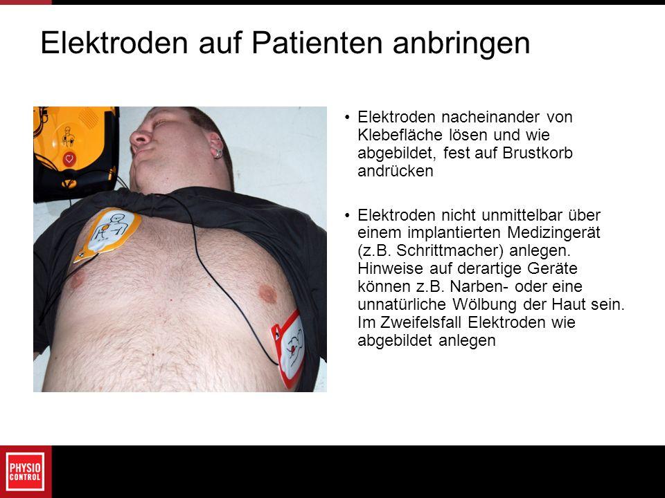Elektroden auf Patienten anbringen Elektroden nacheinander von Klebefläche lösen und wie abgebildet, fest auf Brustkorb andrücken Elektroden nicht unm
