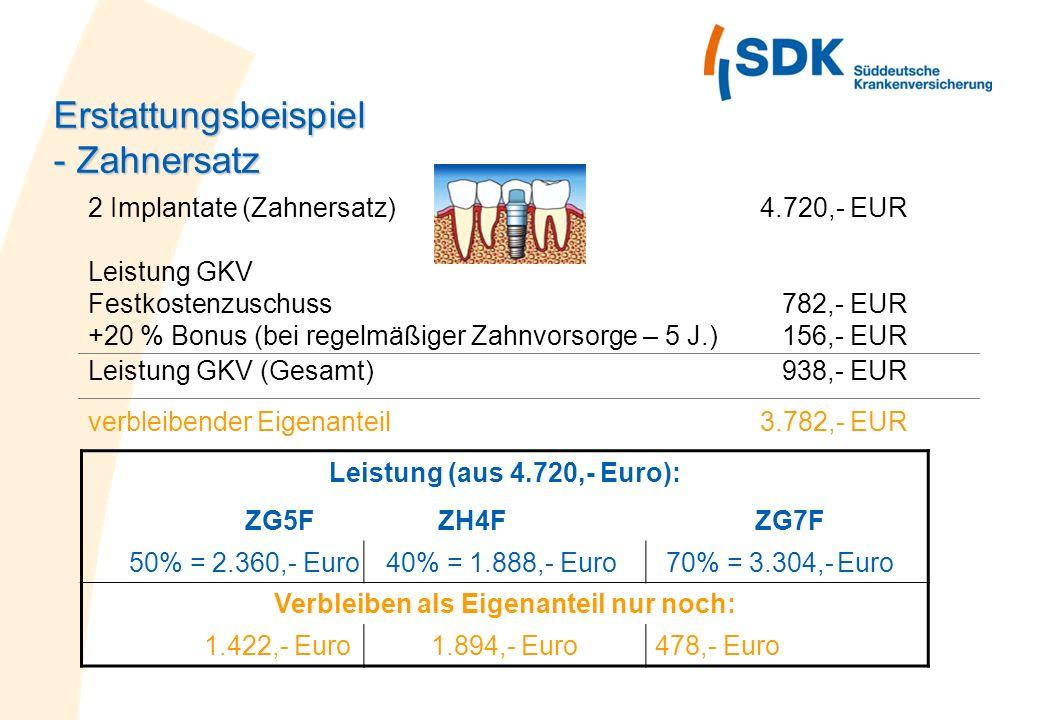 2 Implantate (Zahnersatz)4.720,- EUR Leistung GKV Festkostenzuschuss 782,- EUR +20 % Bonus (bei regelmäßiger Zahnvorsorge – 5 J.) 156,- EUR Leistung G