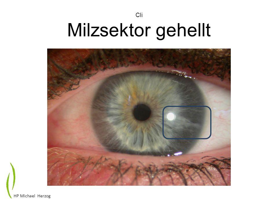 Cli Milzsektor gehellt HP Michael Herzog