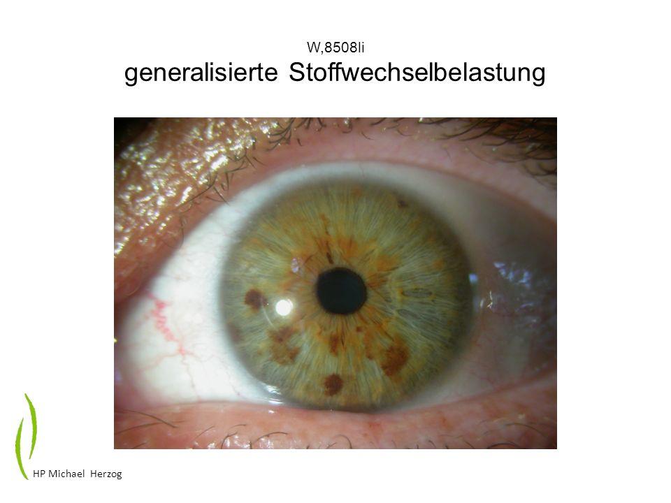 W,8508li generalisierte Stoffwechselbelastung HP Michael Herzog