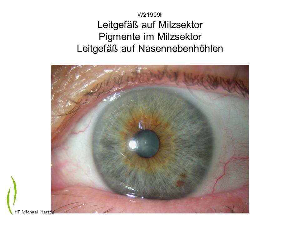 W21909li Leitgefäß auf Milzsektor Pigmente im Milzsektor Leitgefäß auf Nasennebenhöhlen HP Michael Herzog