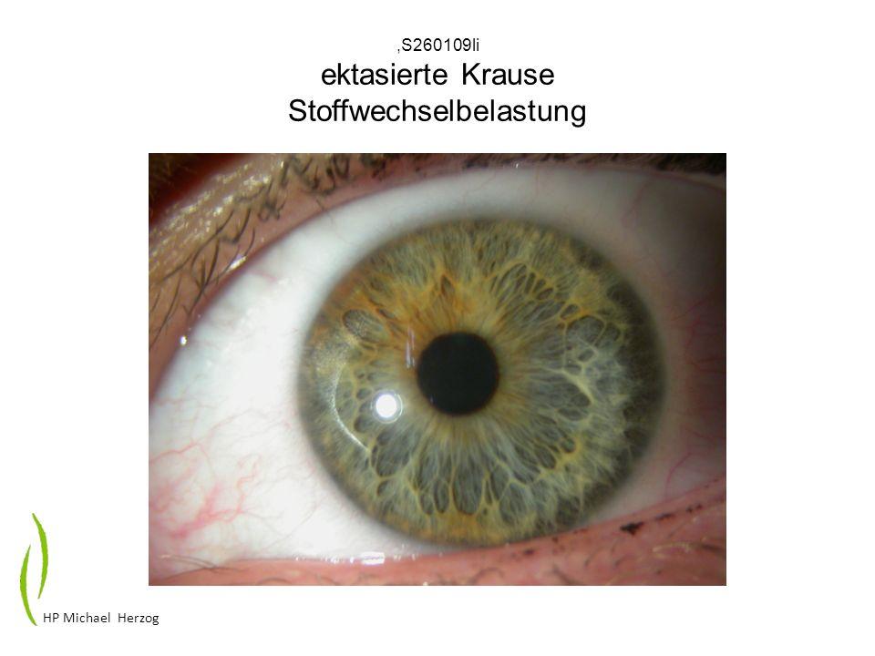 ,S260109li ektasierte Krause Stoffwechselbelastung HP Michael Herzog