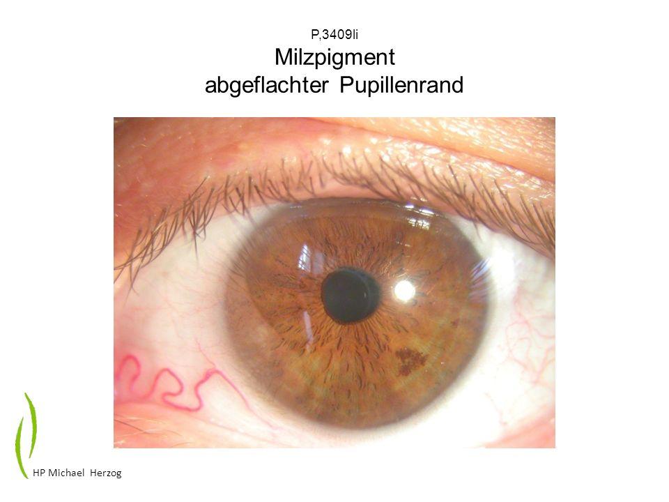 P,3409li Milzpigment abgeflachter Pupillenrand HP Michael Herzog