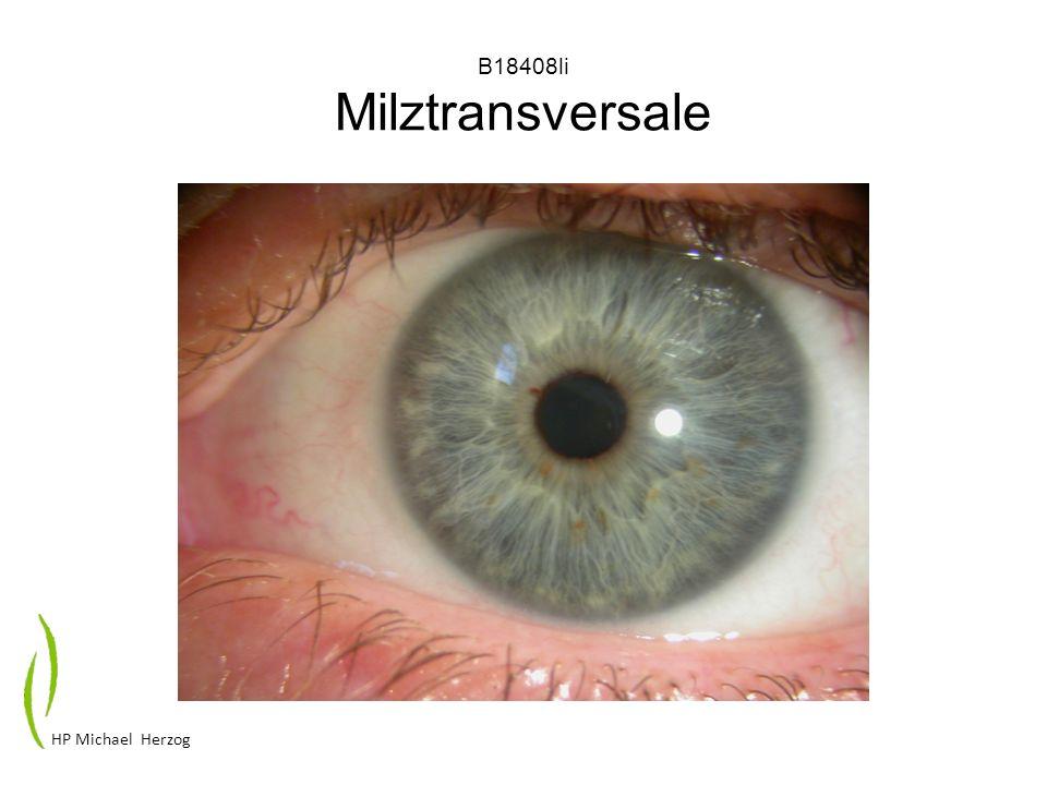 M18809li solitäres Milzpigment HP Michael Herzog