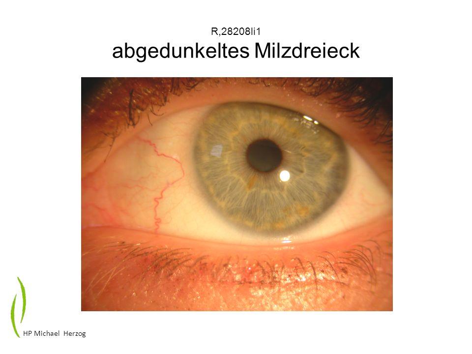 G17908li Übersäuerungsdiathese phänotypisch HP Michael Herzog