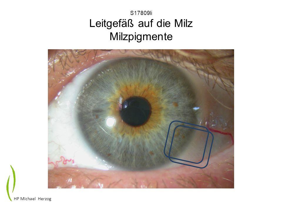 S17809li Leitgefäß auf die Milz Milzpigmente HP Michael Herzog