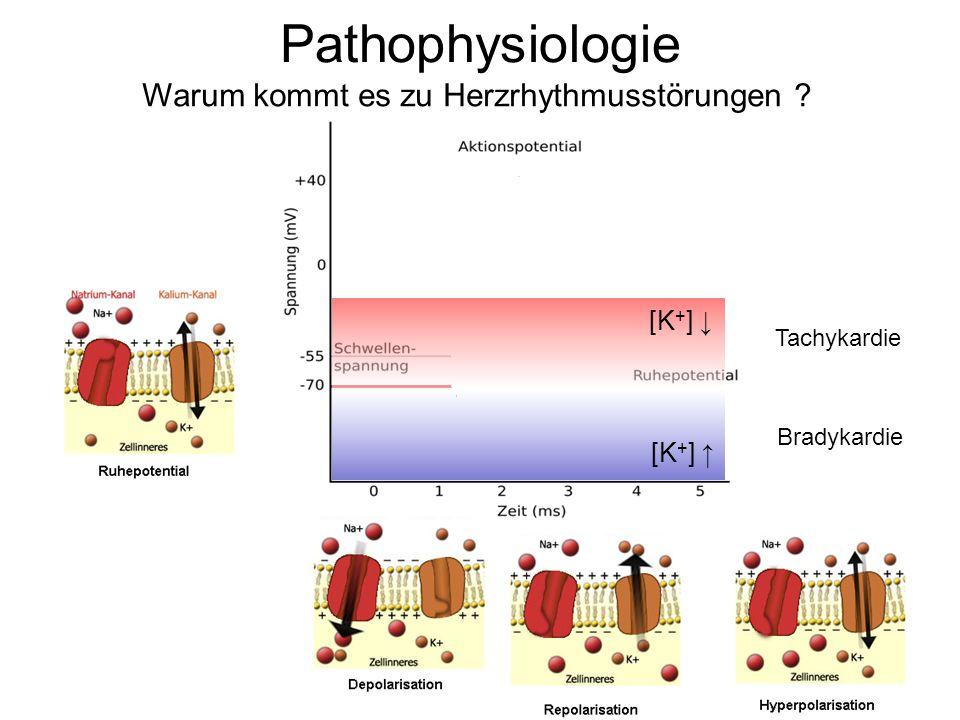 Pathophysiologie Warum kommt es zu Herzrhythmusstörungen ? [K + ] Tachykardie Bradykardie