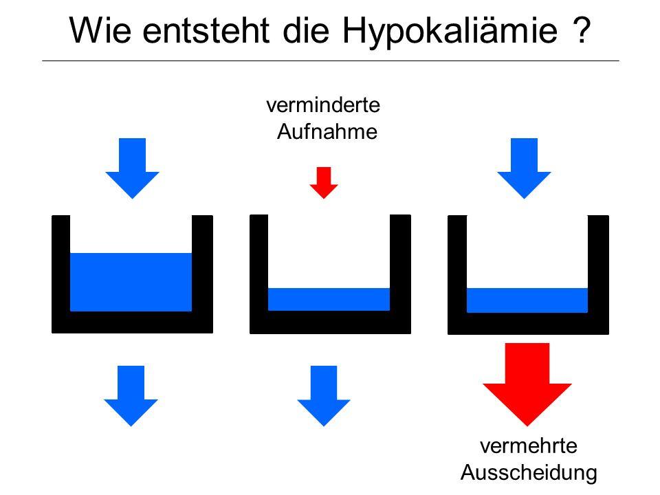 Wie entsteht die Hypokaliämie ? verminderte Aufnahme vermehrte Ausscheidung