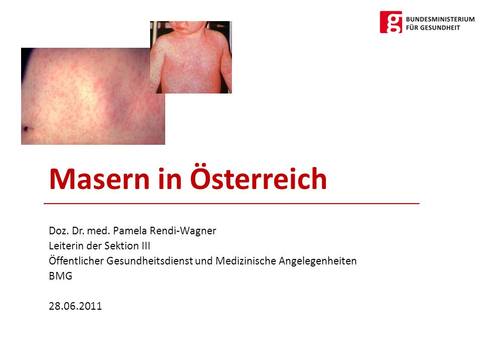 Masern in Österreich Doz. Dr. med. Pamela Rendi-Wagner Leiterin der Sektion III Öffentlicher Gesundheitsdienst und Medizinische Angelegenheiten BMG 28