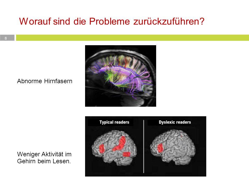 Worauf sind die Probleme zurückzuführen? 8 http://www.spektrum.de/alias/hirnforschung /pfadfinder-durch-die-weisse- substanz/1071715 Abnorme Hirnfaser