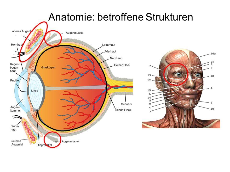 Symptome -Schwäche des Lidhebers = Ptosis = Herabhängen des Oberlides -Schwäche des Lidschließers M.
