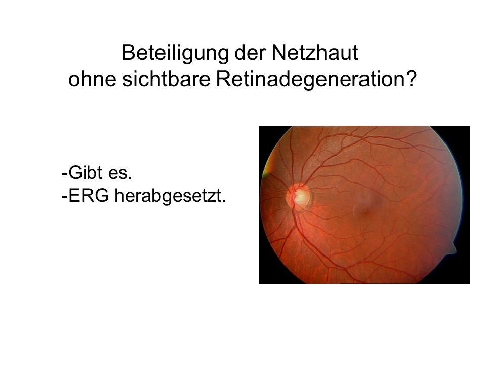 Augenmuskeloperation gegen Schielen/Doppelbilder.