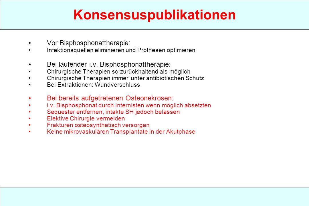 Konsensuspublikationen Vor Bisphosphonattherapie: Infektionsquellen eliminieren und Prothesen optimieren Bei laufender i.v. Bisphosphonattherapie: Chi