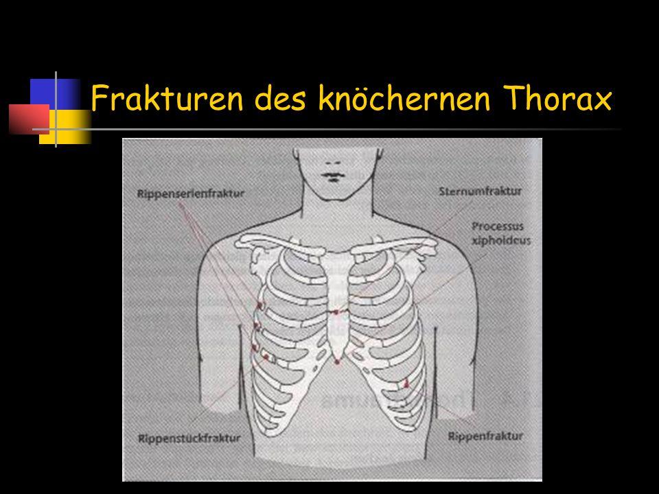 Frakturen des knöchernen Thorax