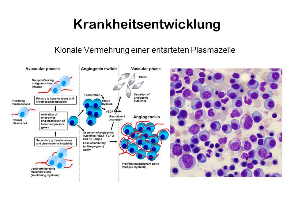 Krankheitsentwicklung Klonale Vermehrung einer entarteten Plasmazelle
