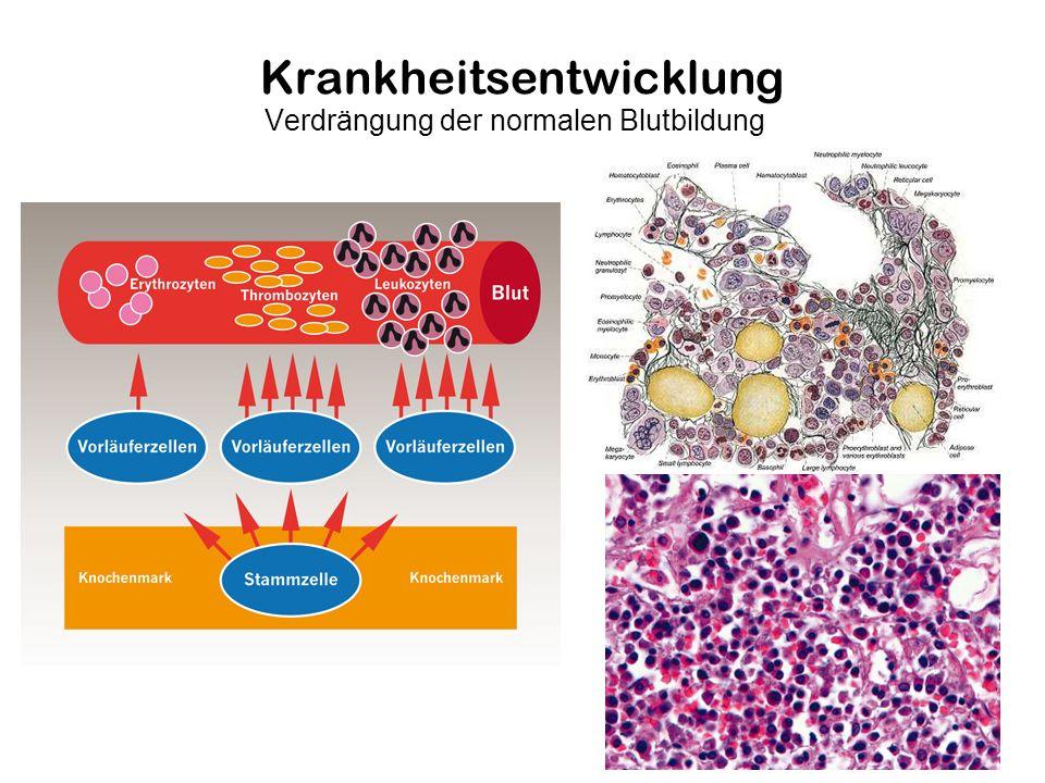 Krankheitsentwicklung Verdrängung der normalen Blutbildung