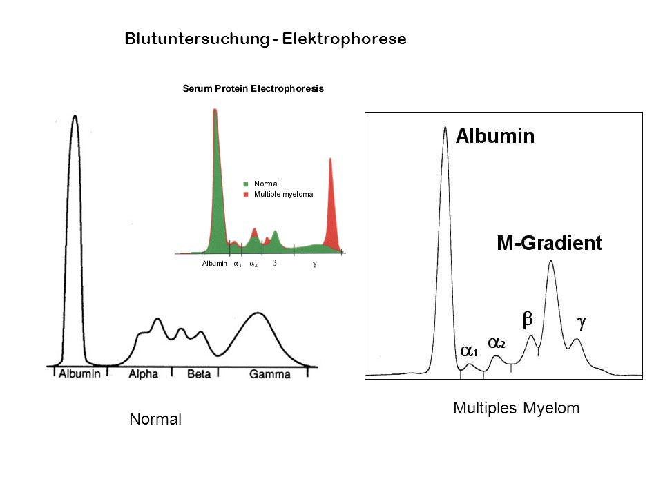Normal Multiples Myelom Blutuntersuchung - Elektrophorese