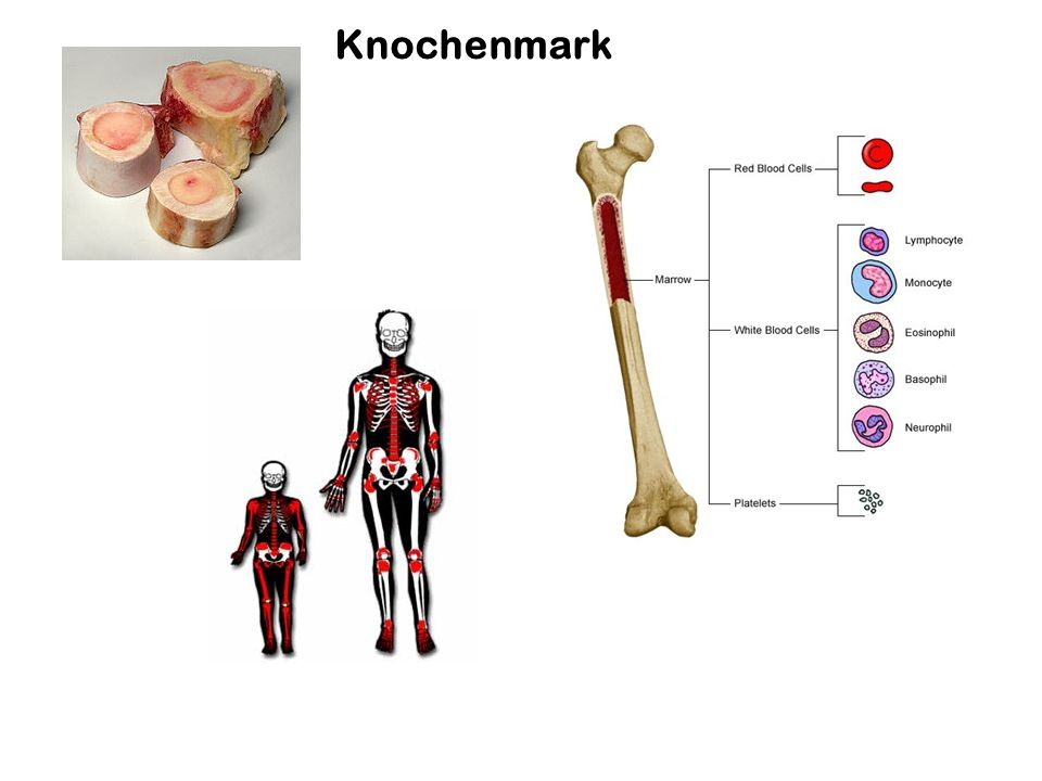 Symptome: Hypercalciämie und Knochenabbau