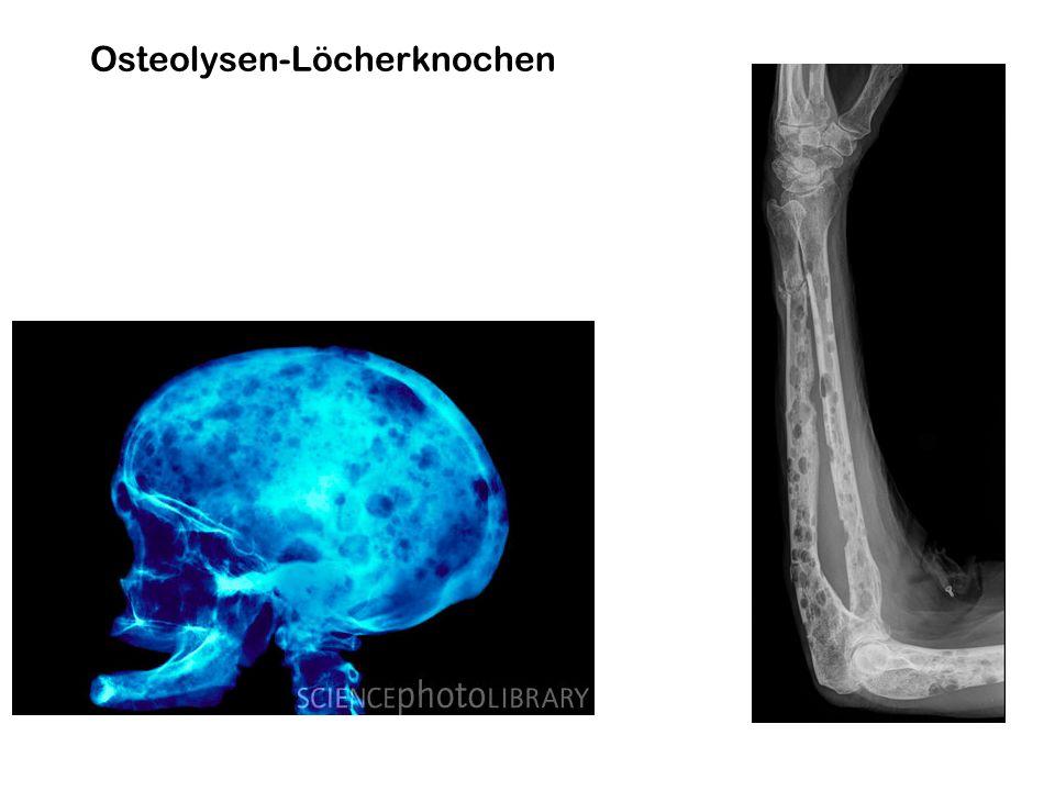 Osteolysen-Löcherknochen