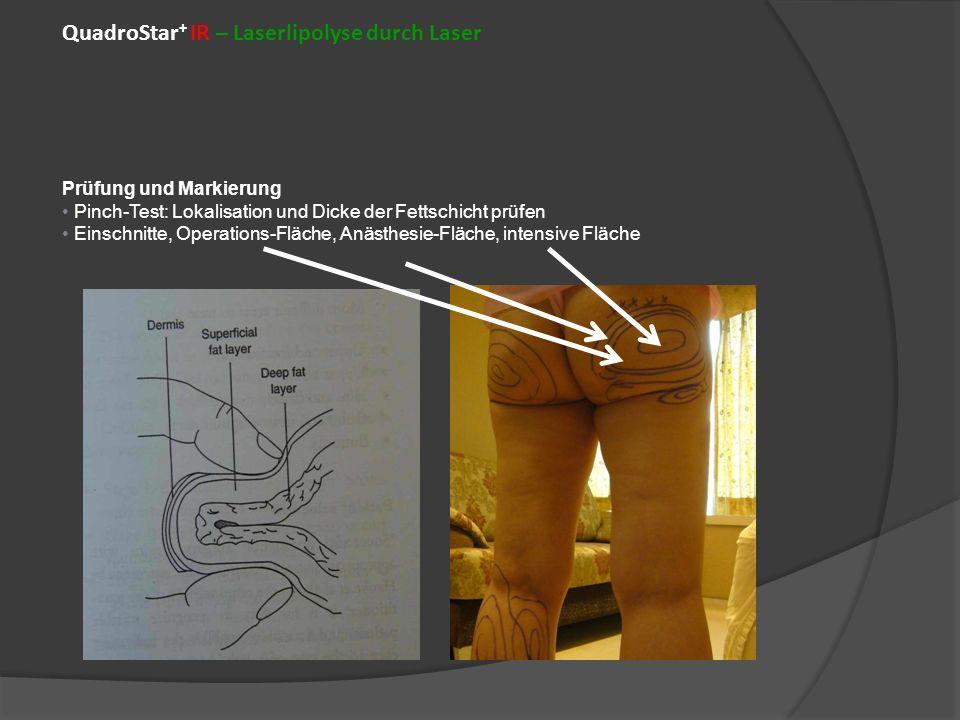 QuadroStar + IR – Laserlipolyse durch Laser Prüfung und Markierung Pinch-Test: Lokalisation und Dicke der Fettschicht prüfen Einschnitte, Operations-Fläche, Anästhesie-Fläche, intensive Fläche