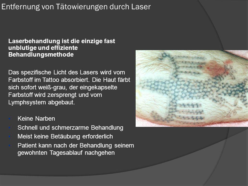 Laserbehandlung ist die einzige fast unblutige und effiziente Behandlungsmethode Das spezifische Licht des Lasers wird vom Farbstoff im Tattoo absorbiert.