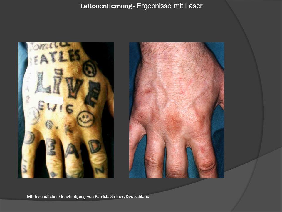 Mit freundlicher Genehmigung von Patricia Steiner, Deutschland Tattooentfernung - Ergebnisse mit Laser