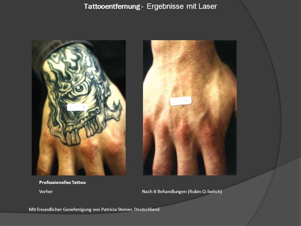 Professionelles Tattoo Vorher Nach 8 Behandlungen (Rubin Q-Switch) Mit freundlicher Genehmigung von Patricia Steiner, Deutschland Tattooentfernung - Ergebnisse mit Laser