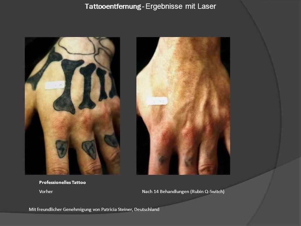 Professionelles Tattoo Vorher Nach 14 Behandlungen (Rubin Q-Switch) Mit freundlicher Genehmigung von Patricia Steiner, Deutschland Tattooentfernung - Ergebnisse mit Laser