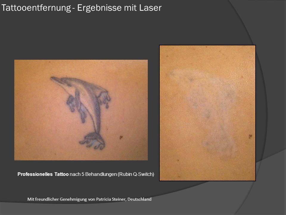 Tattooentfernung - Ergebnisse mit Laser Professionelles Tattoo nach 5 Behandlungen (Rubin Q-Switch) Mit freundlicher Genehmigung von Patricia Steiner, Deutschland