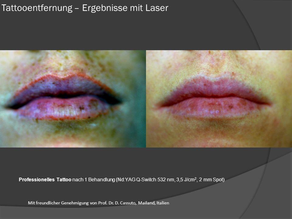 Professionelles Tattoo nach 1 Behandlung (Nd:YAG Q-Switch 532 nm, 3,5 J/cm 2, 2 mm Spot) Tattooentfernung – Ergebnisse mit Laser Mit freundlicher Gene