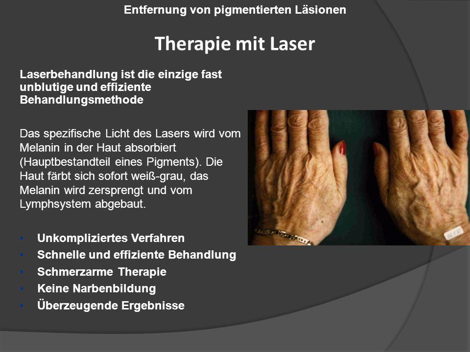 Laserbehandlung ist die einzige fast unblutige und effiziente Behandlungsmethode Das spezifische Licht des Lasers wird vom Melanin in der Haut absorbiert (Hauptbestandteil eines Pigments).