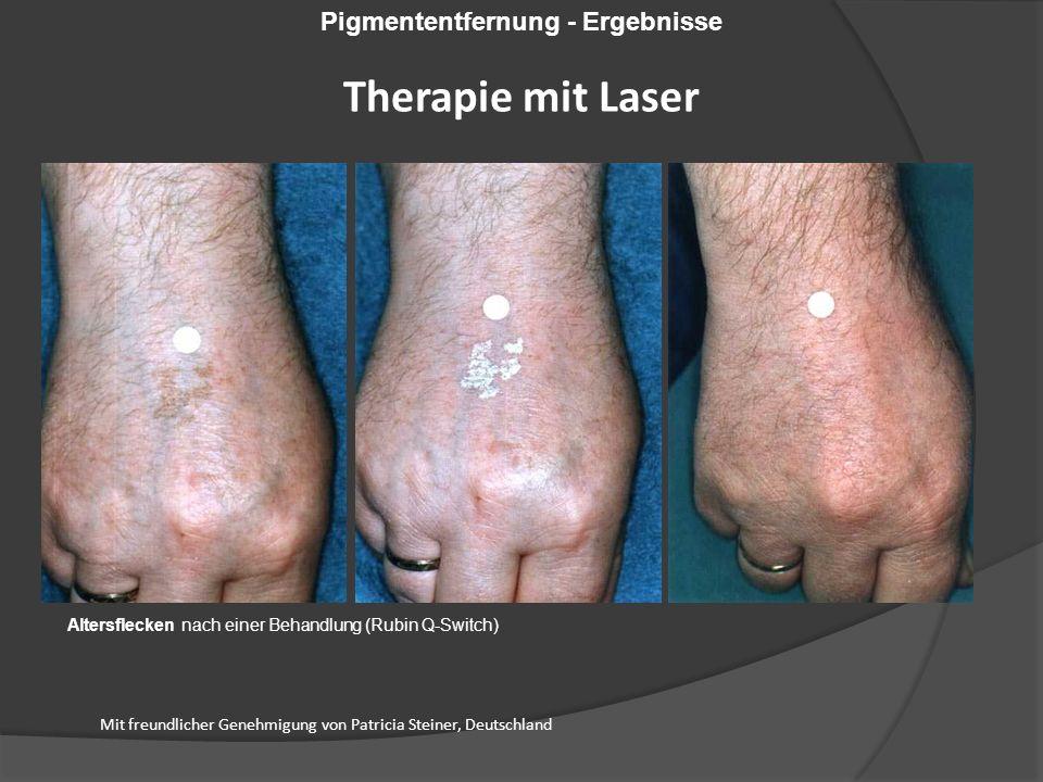 Mit freundlicher Genehmigung von Patricia Steiner, Deutschland Altersflecken nach einer Behandlung (Rubin Q-Switch) Pigmententfernung - Ergebnisse Therapie mit Laser