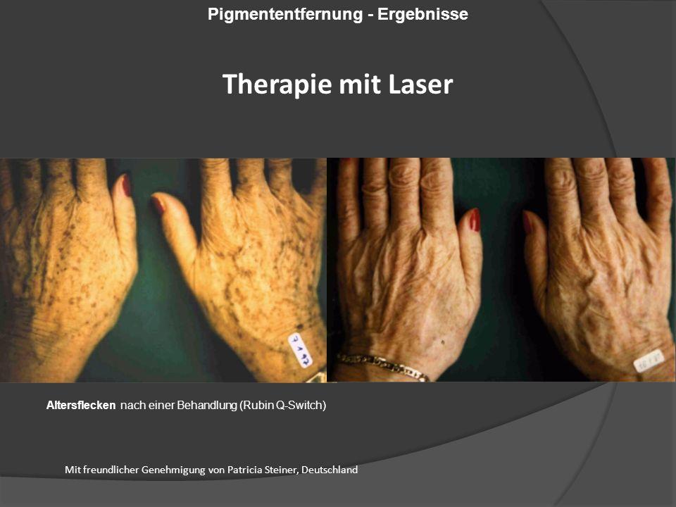 Altersflecken nach einer Behandlung (Rubin Q-Switch) Mit freundlicher Genehmigung von Patricia Steiner, Deutschland Pigmententfernung - Ergebnisse Therapie mit Laser