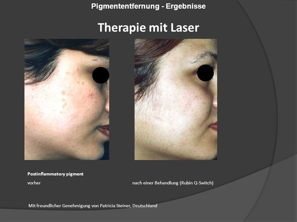 Postinflammatory pigment vorher nach einer Behandlung (Rubin Q-Switch) Mit freundlicher Genehmigung von Patricia Steiner, Deutschland Pigmententfernun