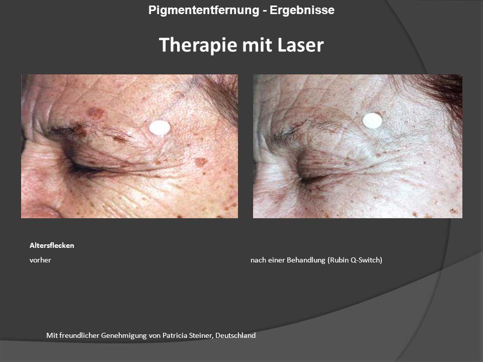Altersflecken vorher nach einer Behandlung (Rubin Q-Switch) Mit freundlicher Genehmigung von Patricia Steiner, Deutschland Pigmententfernung - Ergebnisse Therapie mit Laser