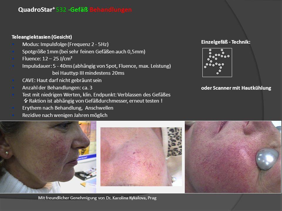 QuadroStar + 532 -Gefäß Behandlungen Mit freundlicher Genehmigung von Dr. Karolina Kykalova, Prag Teleangiektasien (Gesicht) Modus: Impulsfolge (Frequ