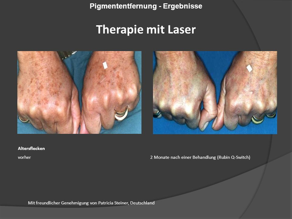 Mit freundlicher Genehmigung von Patricia Steiner, Deutschland Altersflecken vorher 2 Monate nach einer Behandlung (Rubin Q-Switch) Pigmententfernung - Ergebnisse Therapie mit Laser