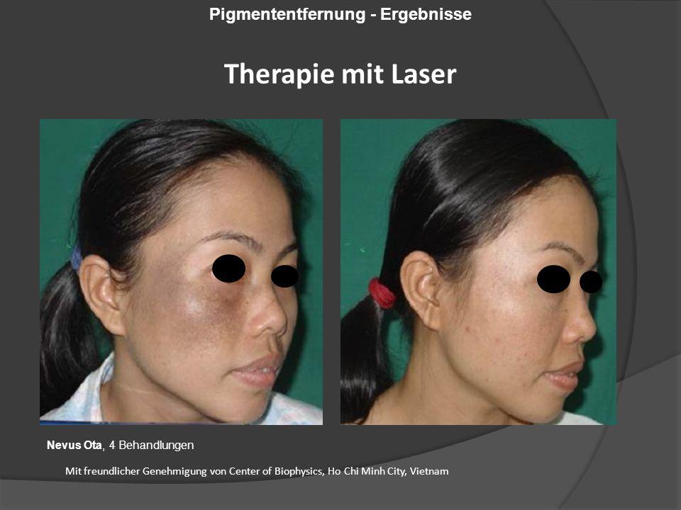 Nevus Ota, 4 Behandlungen Mit freundlicher Genehmigung von Center of Biophysics, Ho Chi Minh City, Vietnam Pigmententfernung - Ergebnisse Therapie mit Laser