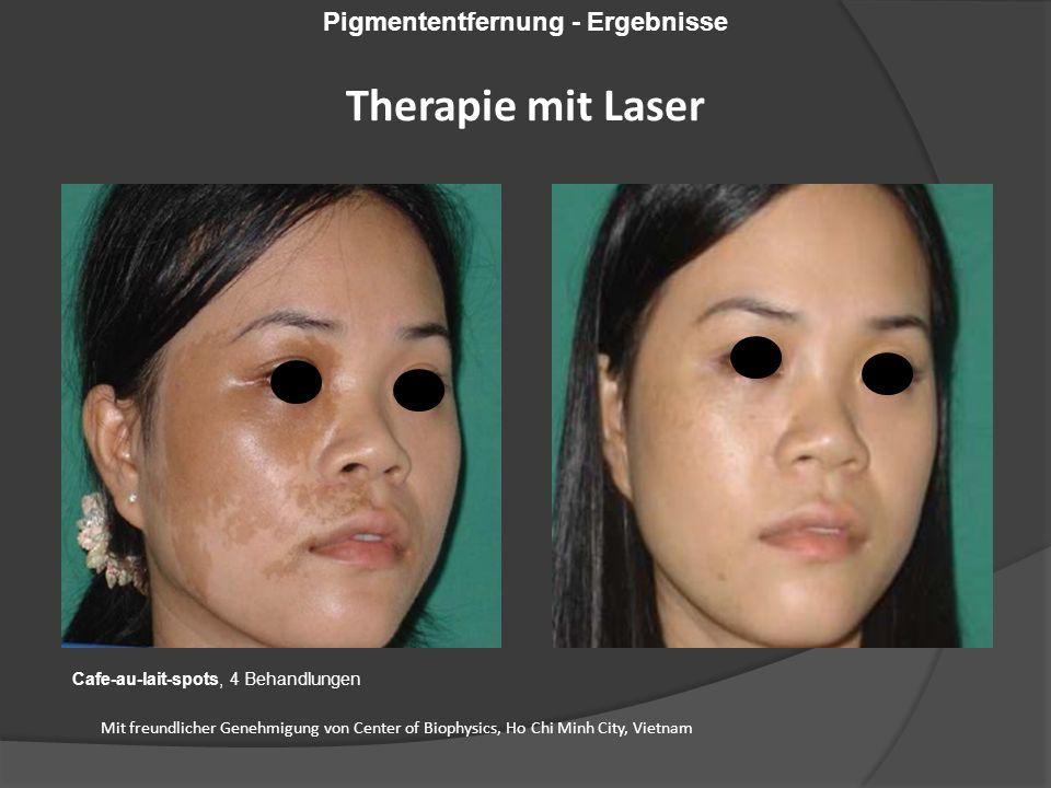 Cafe-au-lait-spots, 4 Behandlungen Mit freundlicher Genehmigung von Center of Biophysics, Ho Chi Minh City, Vietnam Pigmententfernung - Ergebnisse Therapie mit Laser