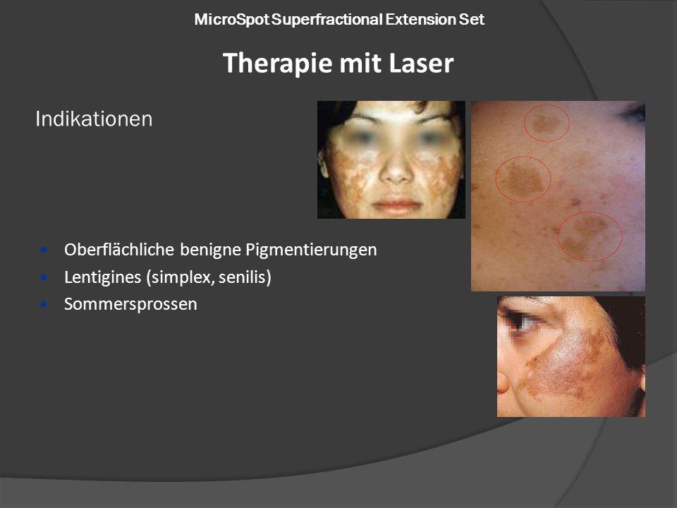 MicroSpot Superfractional Extension Set Oberflächliche benigne Pigmentierungen Lentigines (simplex, senilis) Sommersprossen Indikationen Therapie mit Laser