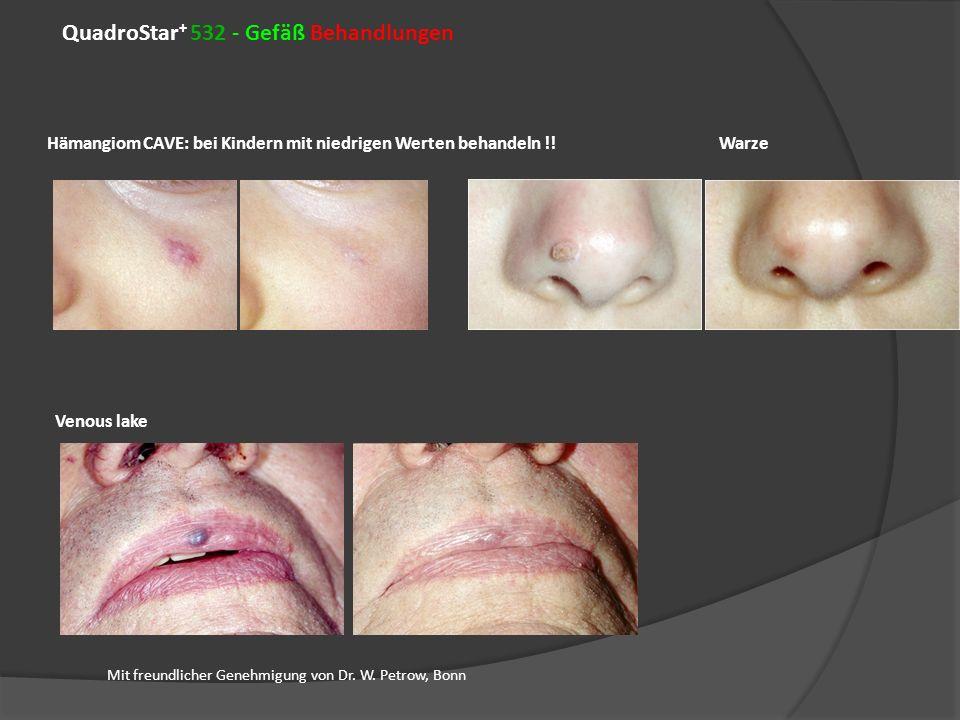 QuadroStar + 532 - Gefäß Behandlungen HämangiomCAVE: bei Kindern mit niedrigen Werten behandeln !!Warze Mit freundlicher Genehmigung von Dr. W. Petrow