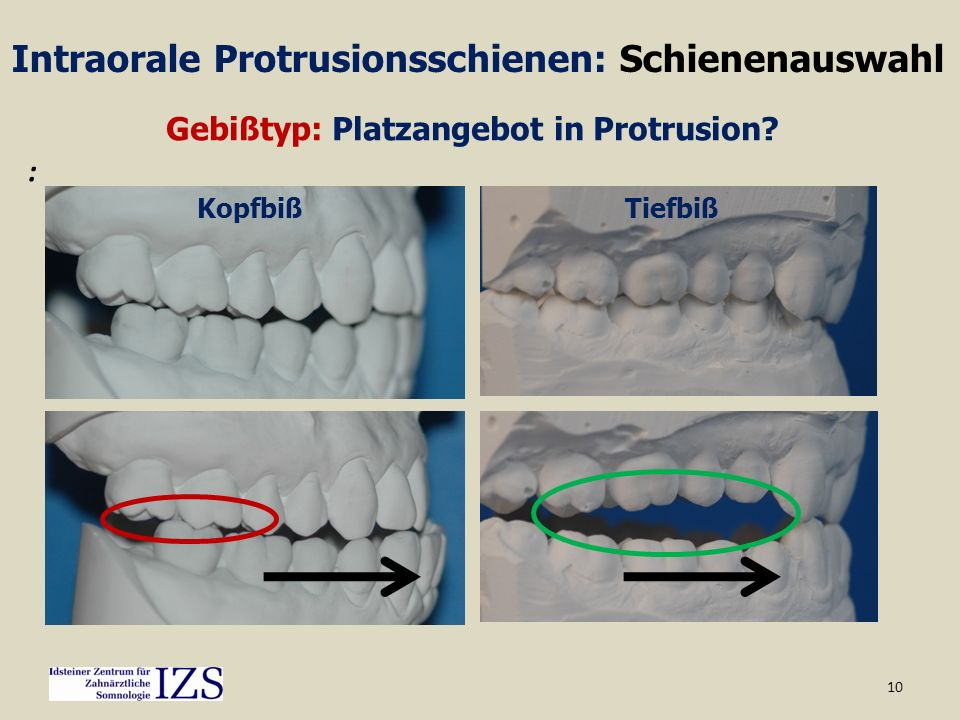 10 TiefbißKopfbiß Intraorale Protrusionsschienen: Schienenauswahl Gebißtyp: Platzangebot in Protrusion? :
