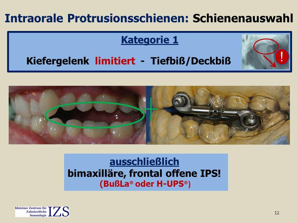12 Intraorale Protrusionsschienen: Schienenauswahl Kategorie 1 Kiefergelenk limitiert - Tiefbiß/Deckbiß ausschließlich bimaxilläre, frontal offene IPS