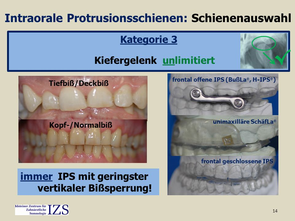 14 Intraorale Protrusionsschienen: Schienenauswahl Kategorie 3 Kiefergelenk unlimitiert Tiefbiß/Deckbiß Kopf-/Normalbiß unimaxilläre SchäfLa ® frontal