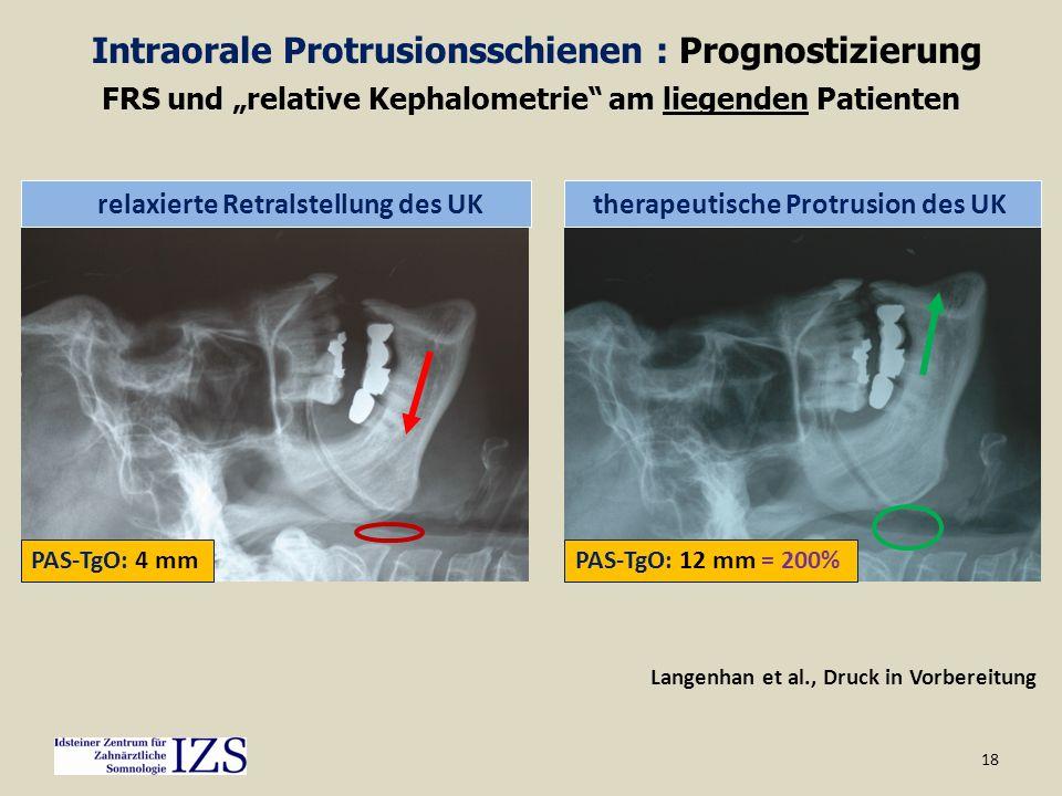18 Langenhan et al., Druck in Vorbereitung PAS-TgO: 4 mm relaxierte Retralstellung des UK PAS-TgO: 12 mm = 200% therapeutische Protrusion des UK FRS u