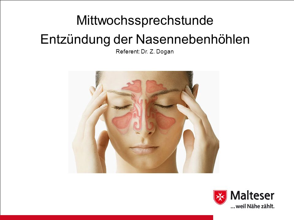 Klinisches Bild der chronischen Rhinosinusitis Weniger markant als bei akuten Entzündungen.